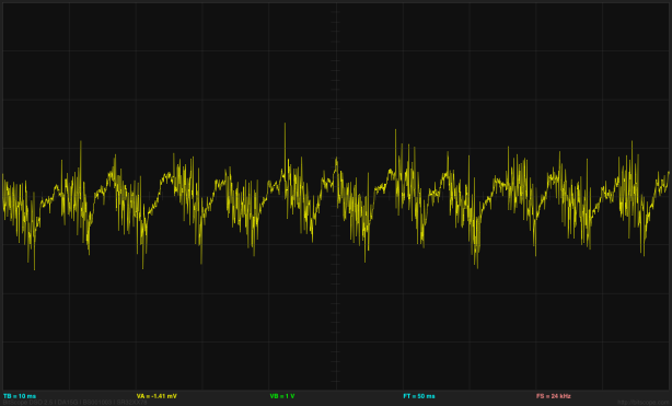 This is now 40mv/division and 10ms/division looking at the output of the EKG amplifer with both inputs shorted to Vref.  The output noise is around 90mV, so the input-referenced noise is around 60µV.