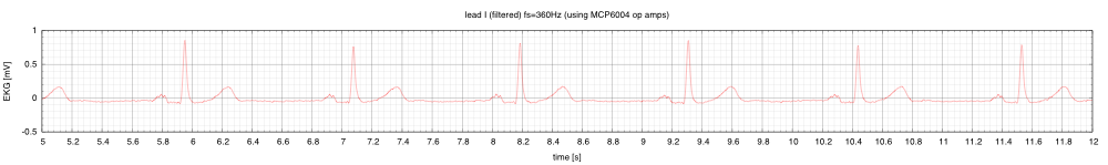 This is lead I (LA-RA), showing how the digital filter cleans up the signal. This was Bessel bandpass filtered to 0.3Hz to 100Hz, followed by notch 57Hz–63Hz, followed by notch 117Hz–123Hz. Each filter was a 5th-order Bessel filter, applied first forward in time then backward in time (using scipy's filtfilt function).