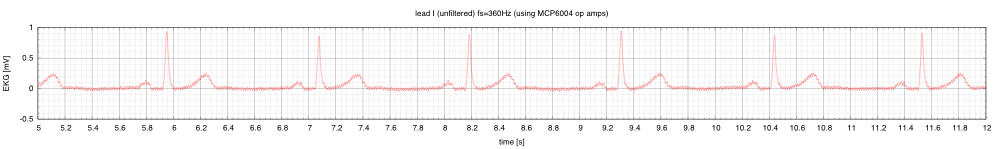 This is lead I, without filtering, showing a rather disturbingly large 60Hz noise signal.