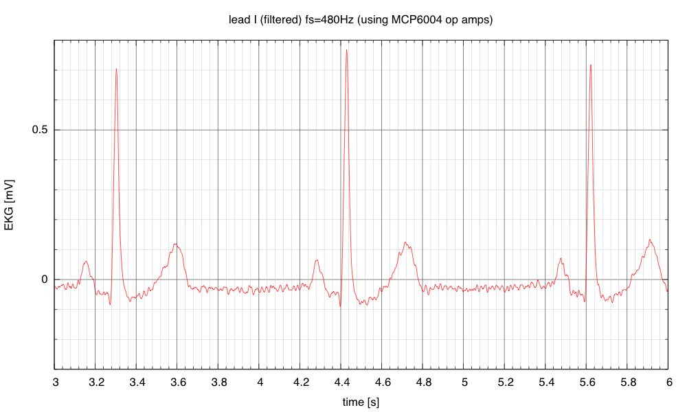 A bandpass filter and pair of  notch filters remove the DC offset and most of the 60Hz and 120Hz interference.