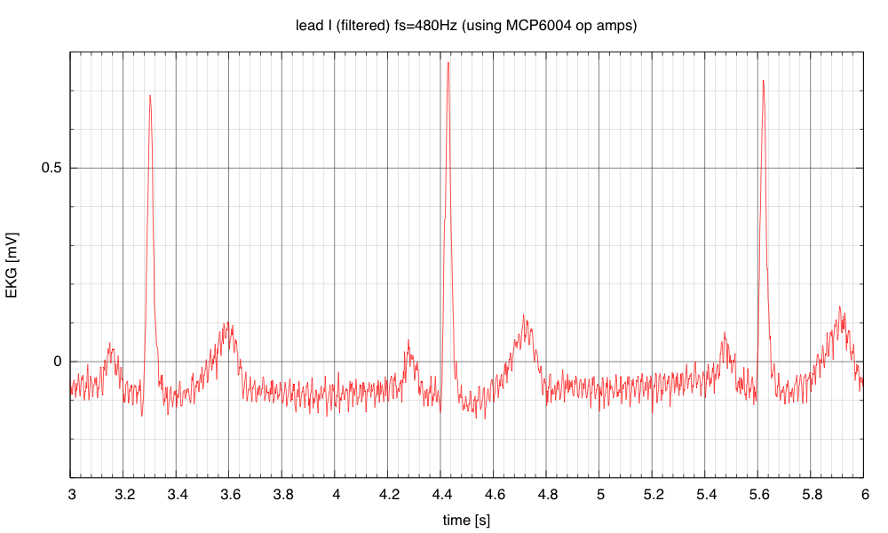 With 480Hz sampling, a moderate amount of capacitively coupled 60Hz interference can be seen.